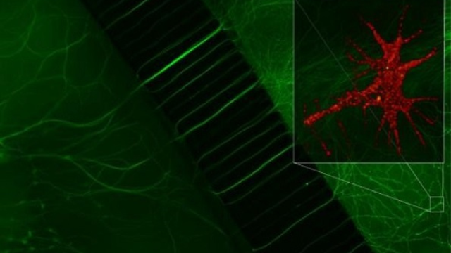 From bite site to brain: How rabies virus hijacks and speeds up transport in nerve cells