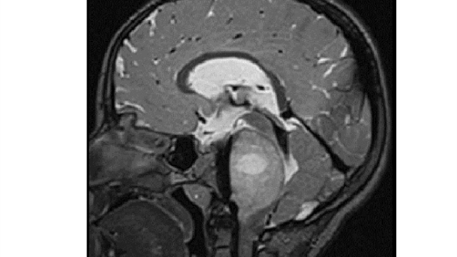Gene sequencing project uncovers mutations tied to deadly pediatric high-grade glioma brain tumors