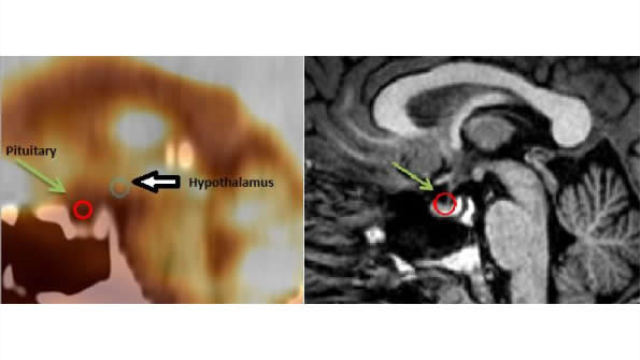 PET/CT shows pituitary abnormalities in veterans with PTSD