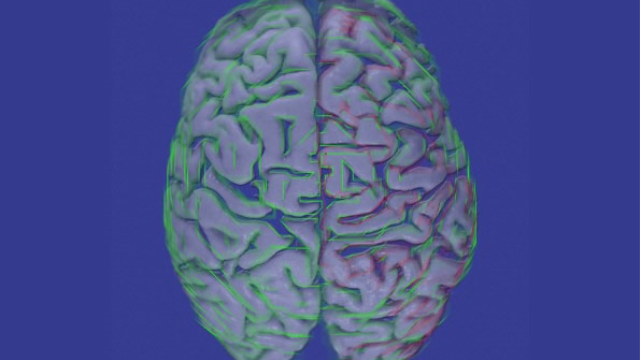 Brain inflammation a hallmark of autism, large-scale analysis shows
