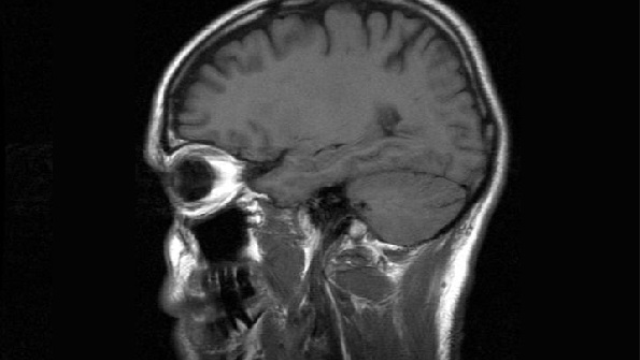 MRI brain scans detect people with early Parkinson's