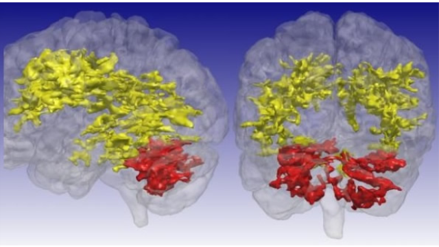MRI scan sensitive to metabolic changes reveals brain differences in bipolar disorder