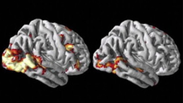 Brain imaging may help predict future behavior