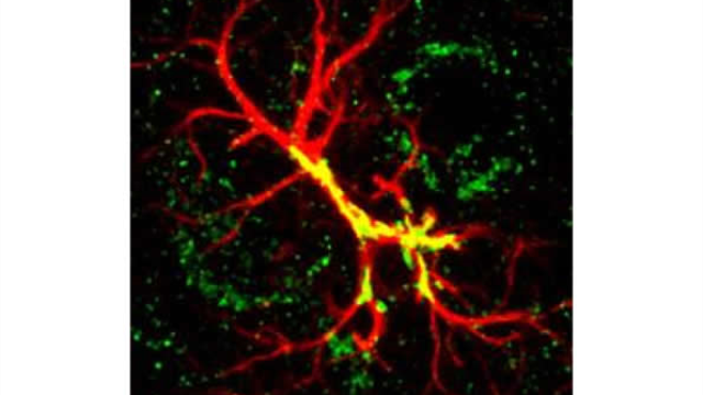 Study Pinpoints Autism-Linked Protein for Sculpting Brain Connections
