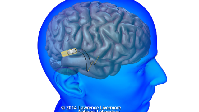 DARPA taps Lawrence Livermore to develop world's first neural device to restore memory