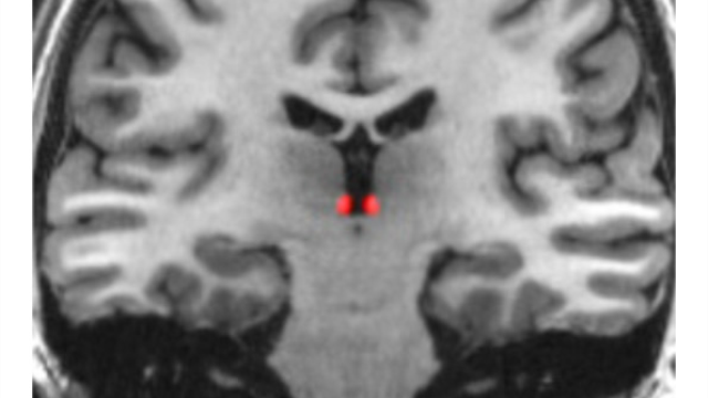 The bit of your brain that signals how bad things could be