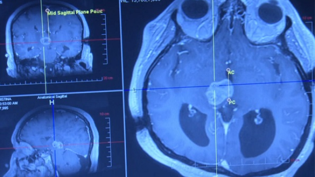 MRI-Guided Biopsy for Brain Cancer Improves Diagnosis