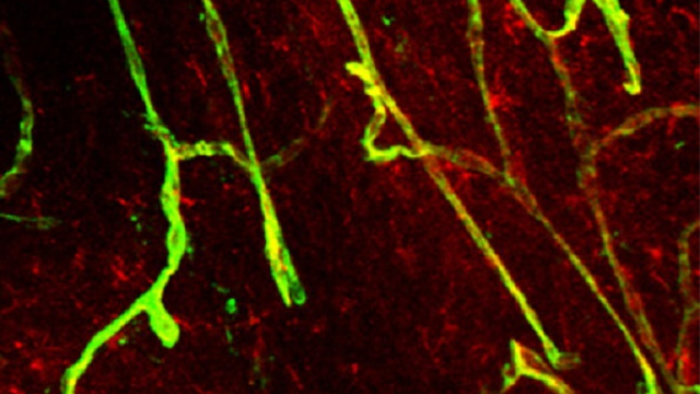 Mechanism offers new insight into opening & closing the blood-brain barrier