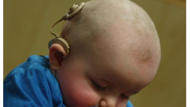 Pattern of cognitive risks identified in some children with cochlear implants
