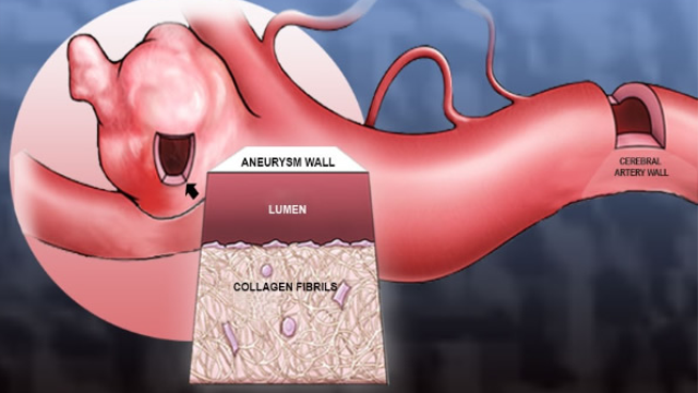 A tool to better screen and treat aneurysm patients
