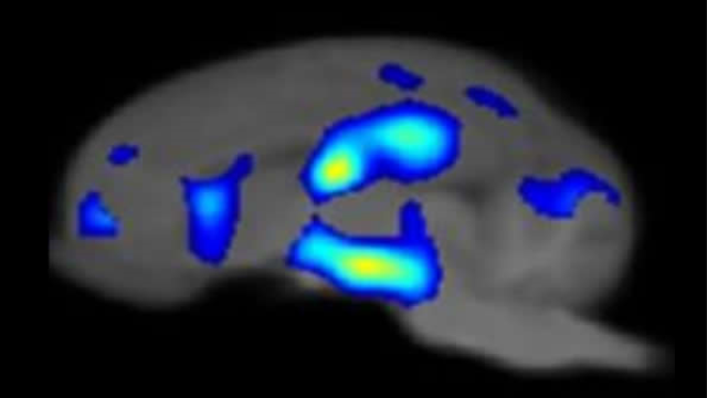 Piglet brain atlas new tool in understanding human infant brain development