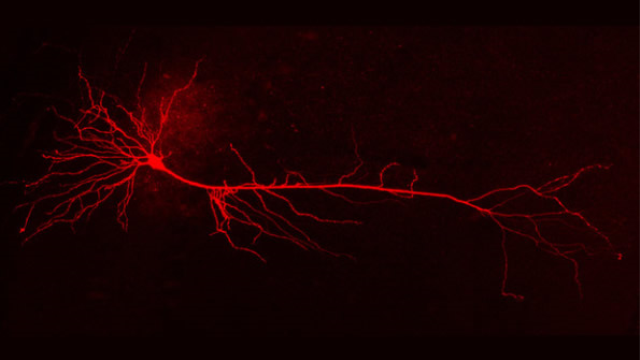 Computer model of nerve cells provides insights into communication problems