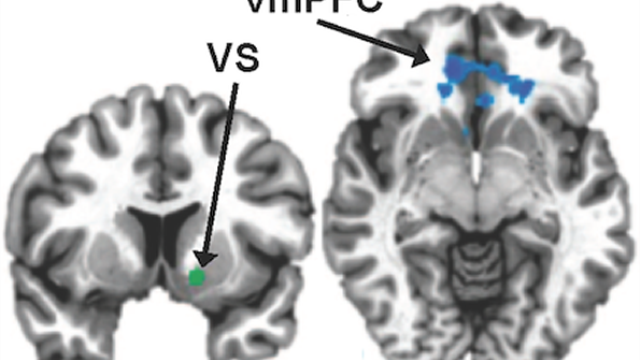 Inflammation linked to weakened reward circuits in depression