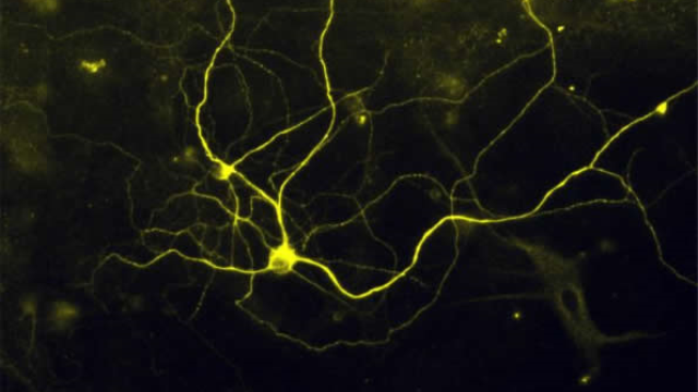 Pain in a dish - Researcher turn skin cells into pain sensing neurons