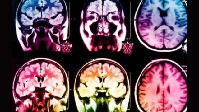 Mechanism that repairs brain after stroke discovered