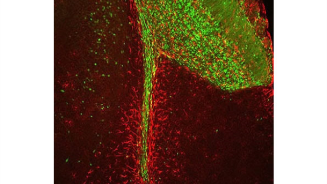 Scientists sniff out unexpected role for stem cells in the brain