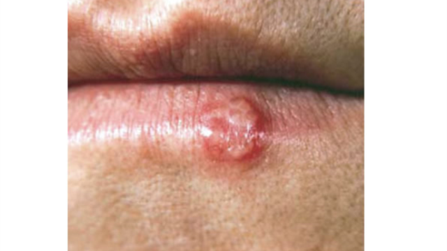 Cold sore virus increases the risk of dementia