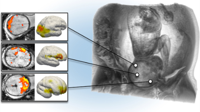 Researchers observe brain development in utero