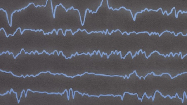 EEG test to help understand and treat schizophrenia