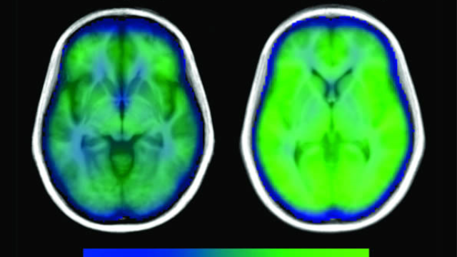 Study provides more evidence that sleep apnea is hurting the brain