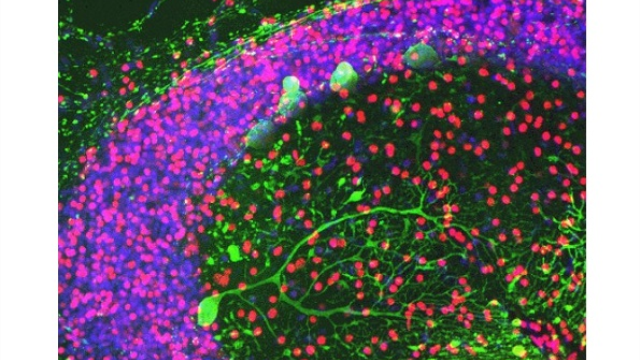 Researchers offer new theory: Autism has roots in early-life injury to the cerebellum