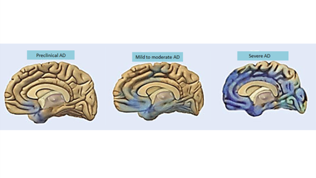 Depression, behavioral changes may precede memory loss in Alzheimer's