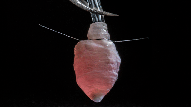 A 3-D Model of a Human Heart Ventricle