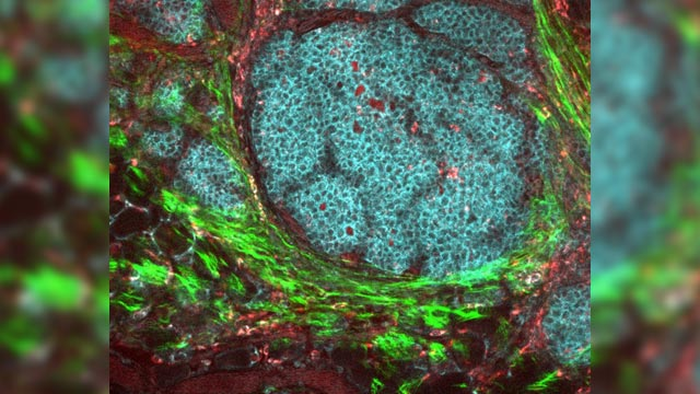 A Better Understanding of Relapse in Breast Cancer