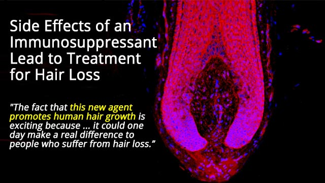 A Cure for Baldness on the Horizon?