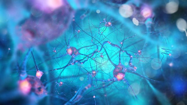 A Grand Plan to Target Cause of Alzheimer's Disease