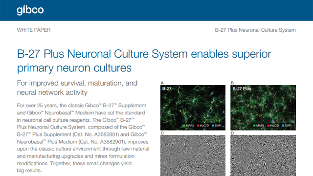 A Look at How a New B-27 Plus Formulation Improves Primary Neuron Survival and Neural Network Activity