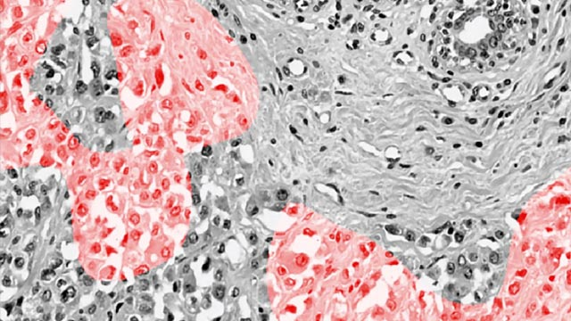 A New Way to Identify Breast Cancer Tumors