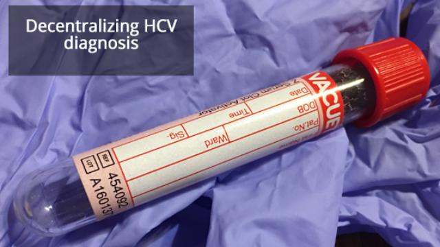 A Novel Point-of-Care Assay Developed for Hepatitis C