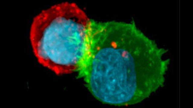 Actin(g) as Protection for Tumor Cells Under Immune Attack