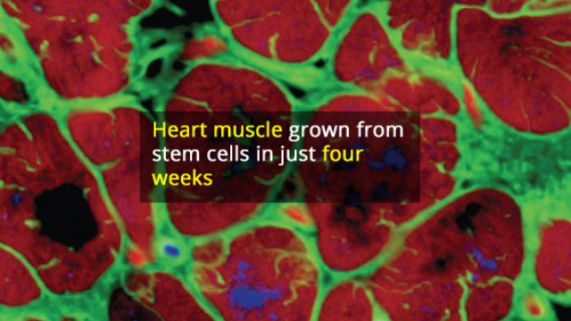 Adult-like Human Heart Muscle Grown from Patient-specific Stem Cells