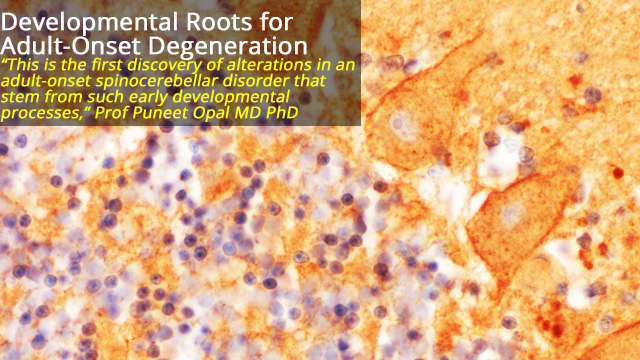 Adult-Onset Neurodegeneration Has Roots in Early Development