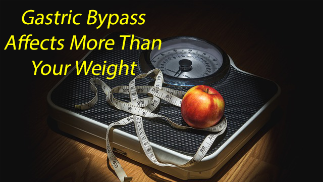 Advancing Technology Helps Understanding of Gastric Bypass Effectiveness