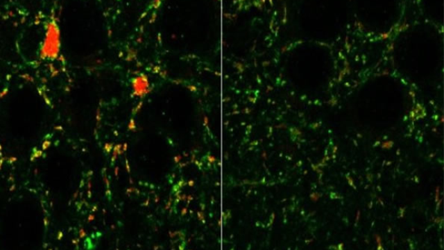 Receptors in brain linked to schizophrenia, autism