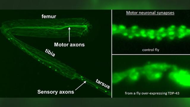 Novel fly model of motor neuron degeneration provides new avenues for exploration in humans