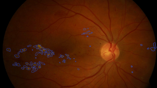 AI Supports Diagnosis of Diabetic Retinopathy