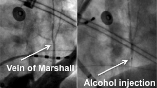 Alcohol may ease the nerves that cause atrial fibrillation