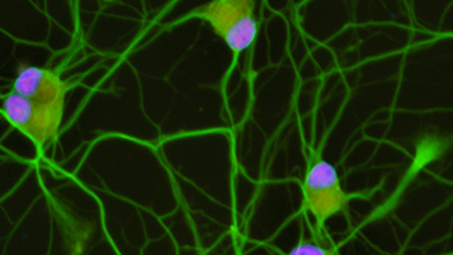 Altering Stathmin2 Expression Rescues Motor Neuron Growth