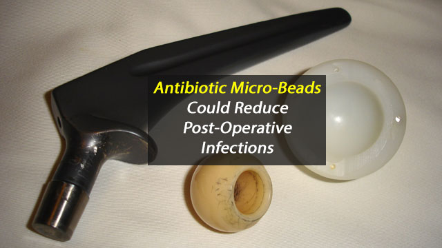 Antibiotic Micro-beads Fight Infection in Joint Replacements