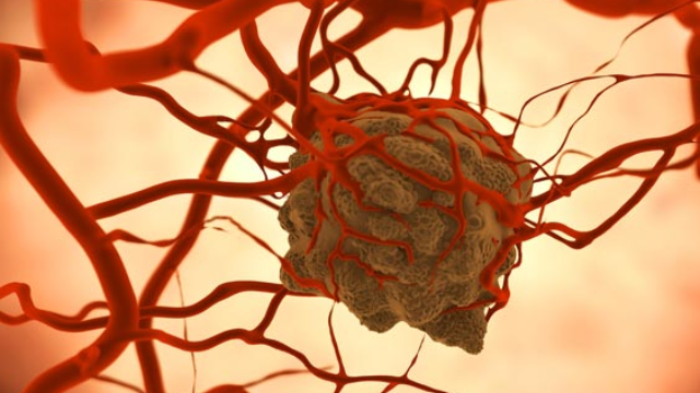 Anticancer Drugs Delivered by a New Drug Delivery System Reduce Tumor Size