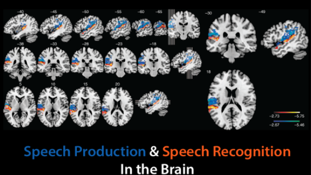 Mapping language in the brain