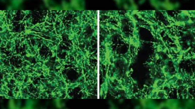 Researchers more accurately define role of dopamine neurons in movement