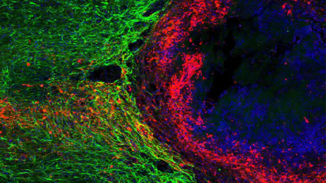 New role identified for scars at the site of injured spinal cord