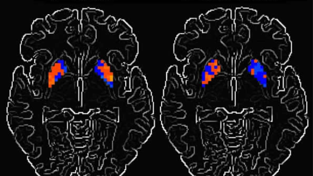 How Parkinson's disease alters brain activity over time