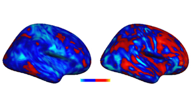 "Researchers discover ""idiosyncratic"" brain patterns in autism"