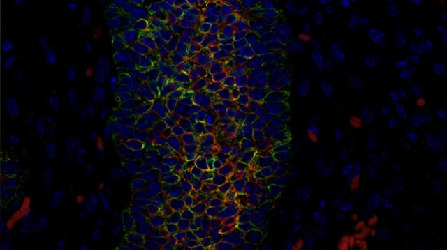 Back to the Future: Breast Cancer Repeats Pathways Found in Fetal Cells